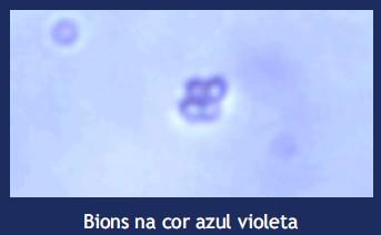 bions